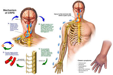 Complex Regional Pain Syndrome (CRPS)