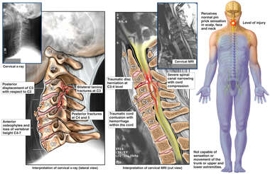 Cervical Spine Injuries with Subsequent Quadriplegia