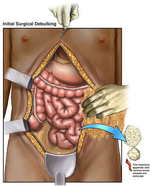Abdominal Tumor Resection