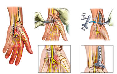 Left Wrist Injuries with Surgical Repairs