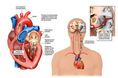 Progression of Endocarditis with Eventual Fatal Cerebral Artery Stroke
