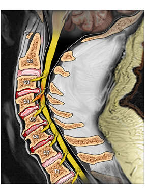 Appearance of Cervical Spine Before Surgery