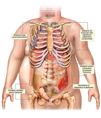 Obese Male Torso with Thoracic and Abdominal Trauma Including Multiple Rib, Pelvic Fractures, and Hemtoma