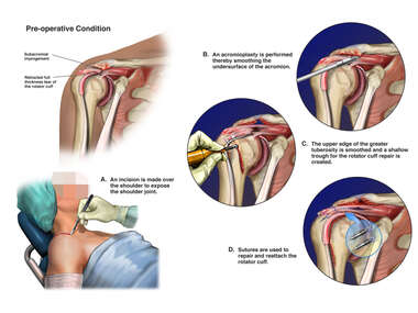Full Thickness Rotator Cuff Tear with Surgical Repairs