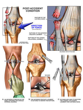 Rupture of the Iliotibial Band, Lateral Collateral Ligament and Post-accident Knee Injuries with Surgical Repairs