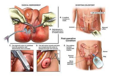 Radical Debridement and Diverting Colostomy Procedure