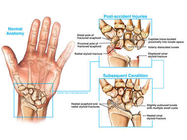 Wrist Fractures and Dislocation