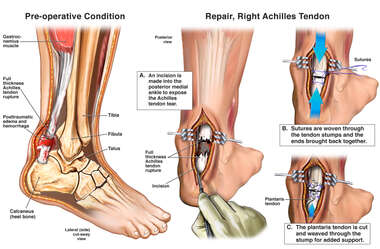 Right Achilles Tendon Tear with Surgical Repair