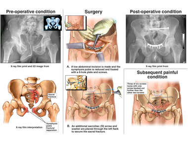 Pelvic Fractures with Internal Fixation Surgery