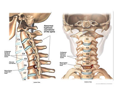 Post-operative Kyphosis of the Spine