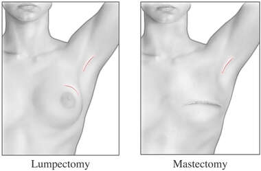 Lumpectomy and Mastectomy - Appearance After Surgery