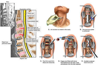 Cervical Spine Injuries with Double Level Anterior Discectomy and Fusion Surgery