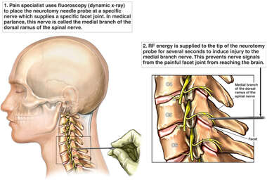 Cervical Facet Radio Frequency (RF) Neurotomy
