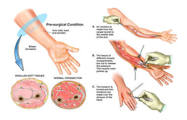 Compartment Syndrome of the Left Arm with Surgical Fasciotomies and Carpal Tunnel Release