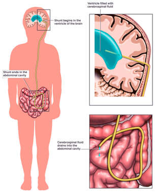 The Function of a Ventriculoperitoneal Shunt