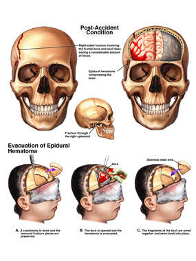 Post-accident Head Injuries with Surgical Repairs