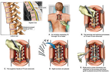 Traumatic Spinal Injuries with Surgical Fusion