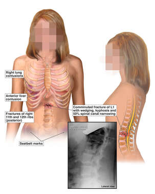 Front and Side Views of Female Torso with Injuries to the Lungs, Liver, Ribs and Spine