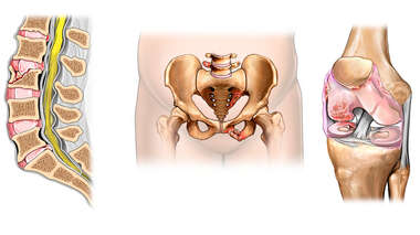 Post-accident Injuries to the Lumbar Spine, Pelvis and Knee