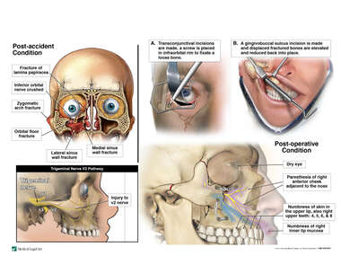 Traumatic Facial Fractures with Surgical Fixation