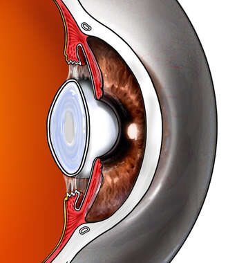 Eyeball with Iris, Lens and Cornea, Mid-line Cut-away View