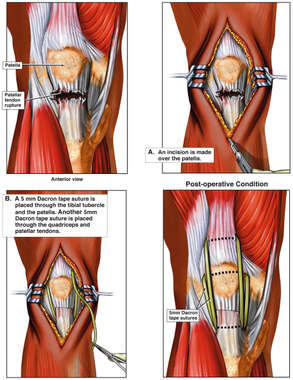 Ruptured Patella Ligament Repair