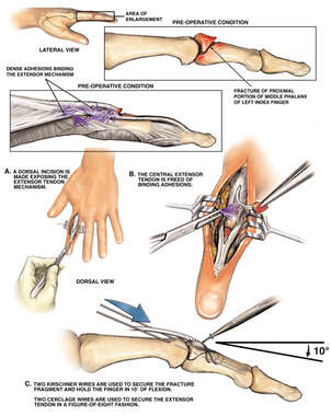Injuries of the Left Index Finger with Surgical Repairs