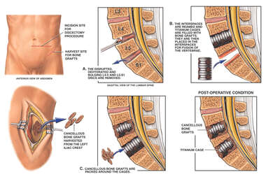 L4-5 and L5-S1 Discectomy and Fusion Procedure