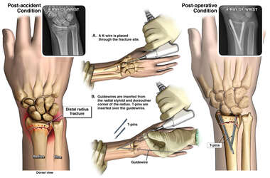 Right Wrist Fracture with Surgical Pinning
