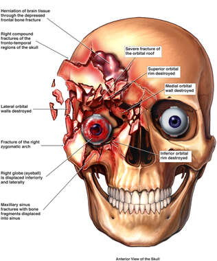 Post-accident Injuries to the Skull and Right Eye Orbit
