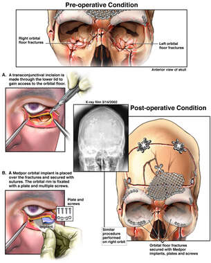 Repair of Inferior Orbital Fractures