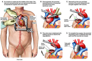 Aortic Semilunar Valve Repair