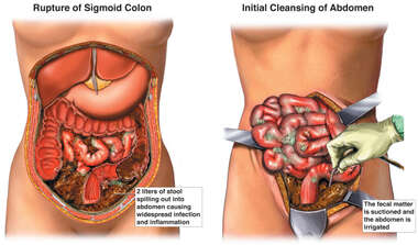 Colon Resection