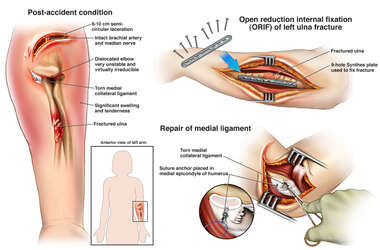 Multiple Left Arm Injuries with Surgical Repairs