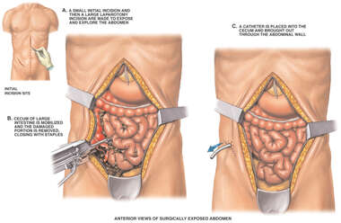 Exploratory Laparotomy with Cecostomy and Partial Cecestomy
