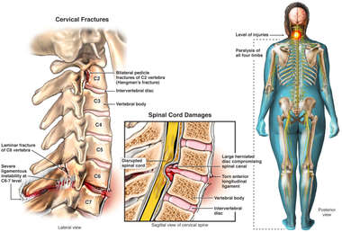 Cervical Spine Injuries with Quadriplegia