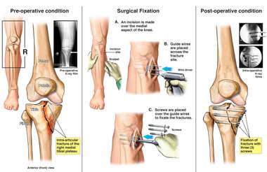 Right Tibial Plateau Fracture with Surgical Fixation