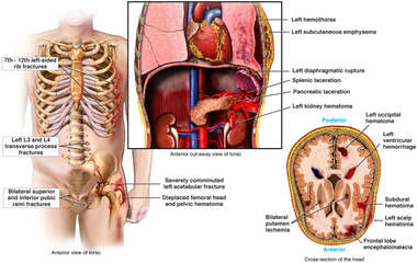 Injuries to the Ribs, Hip, Brain, Spleen and Lungs from Auto Accident