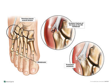Fracture and Malunion of the Right 5th Metatarsal