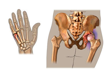 Post-accident Injuries to the Hand and Right Hip