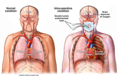 Intra-operative Hypoxic Event