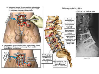 Posterior Lumbar Surgical Fusion and Subsequent Condition