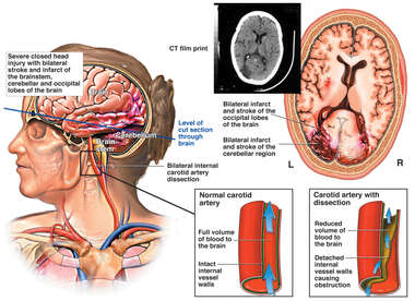 Female Head with Post-accident Brain Injuries and Arterial Dissection