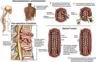 Thoracic Spine Fractures with Multilevel Laminectomies and Spinal Fusion