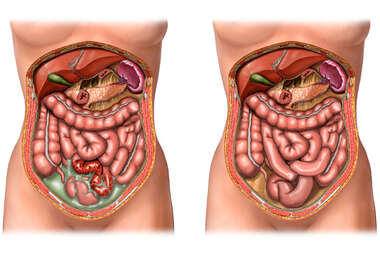 Crohn's Ileitis with Surgical Resection