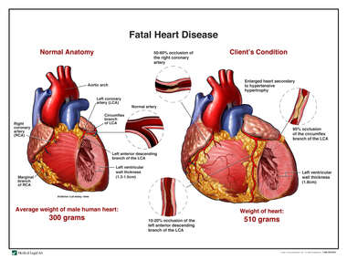Fatal Heart Disease