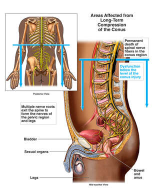 Long-term Effects of Lower Spinal Cord Compression