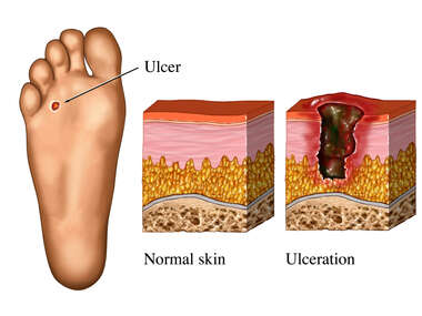Ulcers of the Foot