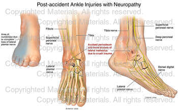Post-accident Ankle Injuries with Neuropathy