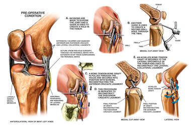 Instability of the Knee with Reconstruction of the Support Ligaments